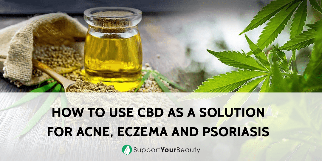 CBD as a Solution for Acne, Eczema and Psoriasis